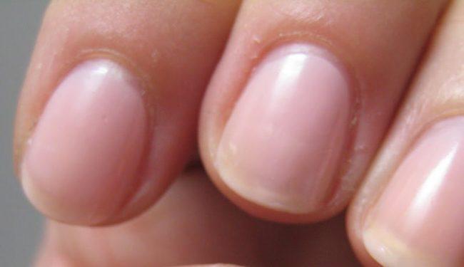 Tratamente naturiste pentru unghii